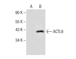 ACTL8 (h): 293T Lysate